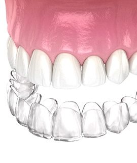 Digital image of a clear aligner going on over the top arch of teeth