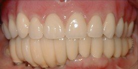 Healthy smile after treatment