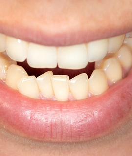A person's crowded bottom row of teeth