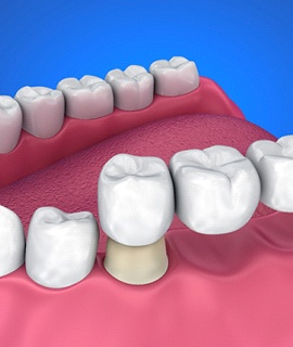 tooth colored dental bridge placement
