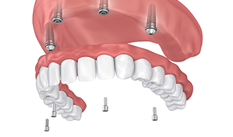 Animation of implant supported denture placement