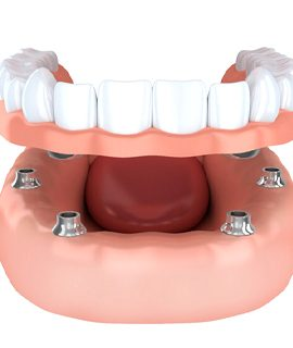 implant-retained dentures in Round Rock