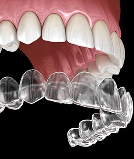 computer illustration of Invisalign trays being placed over an arch of teeth