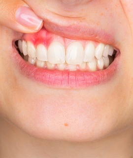 woman showing irritated gum tissue