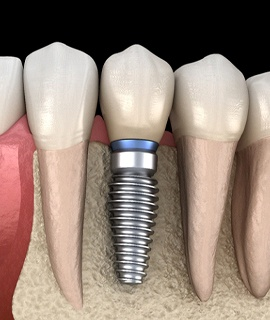 single dental implant in mouth