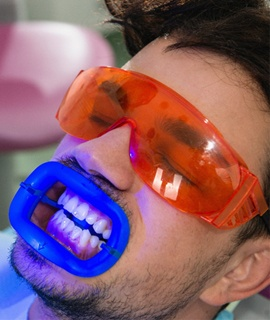 teeth whitening oral protection glasses