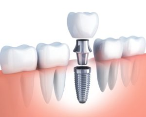 Diagram of the different parts of a dental implant